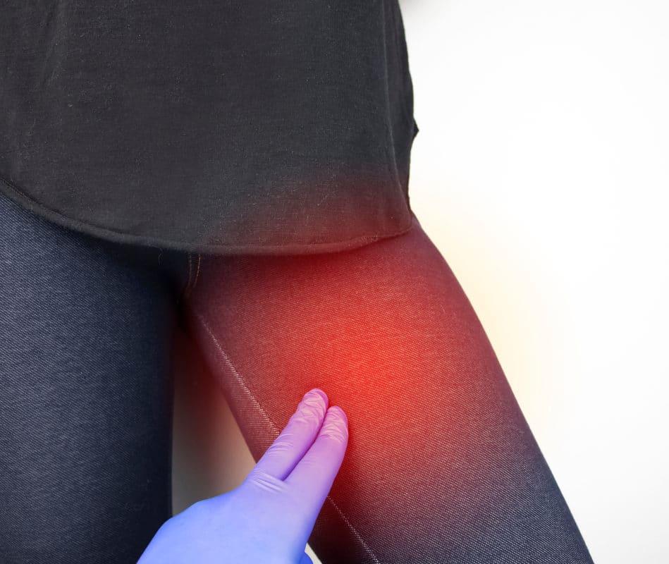 Adduktorenschmerzen und -zerrungen: Oberschenkel selbst