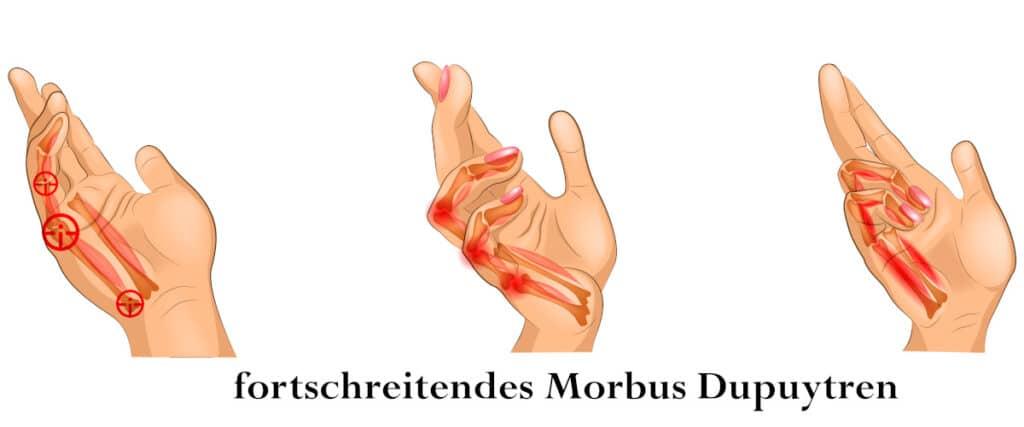 Finger knubbel Arthrose in