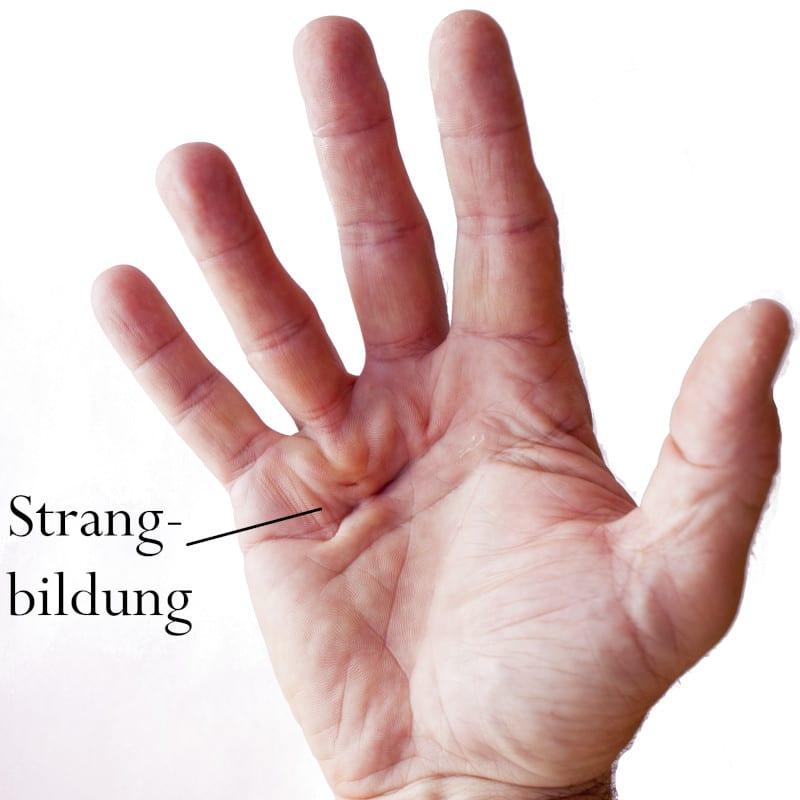 Linker ringfinger juckt bedeutung