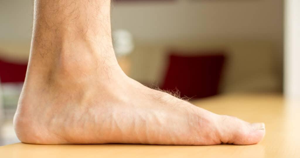 Faszien Fußsohle Schmerzen
